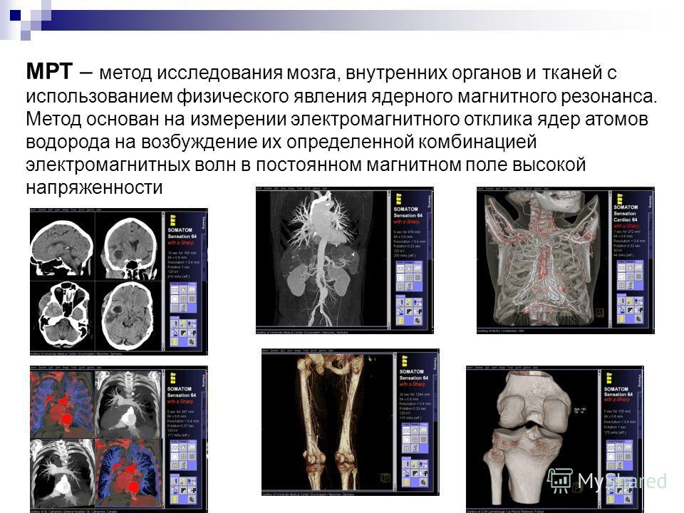 МРТ – метод исследования мозга, внутренних органов и тканей с использованием физического явления ядерного магнитного резонанса. Метод основан на измерении электромагнитного отклика ядер атомов водорода на возбуждение их определенной комбинацией элект