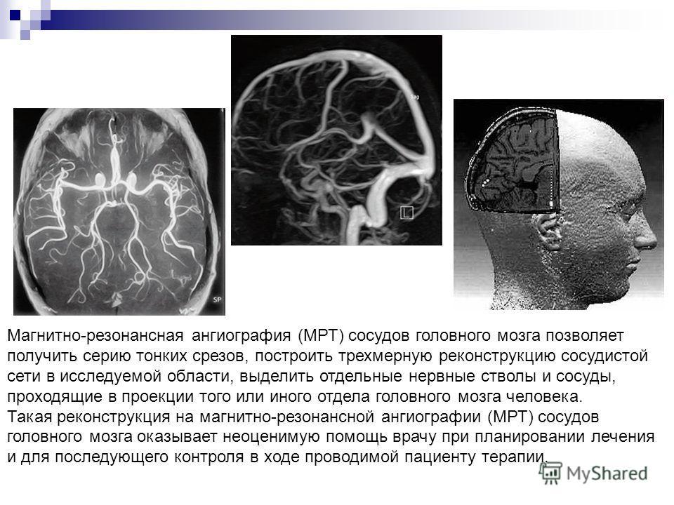Магнитно-резонансная ангиография (МРТ) сосудов головного мозга позволяет получить серию тонких срезов, построить трехмерную реконструкцию сосудистой сети в исследуемой области, выделить отдельные нервные стволы и сосуды, проходящие в проекции того ил