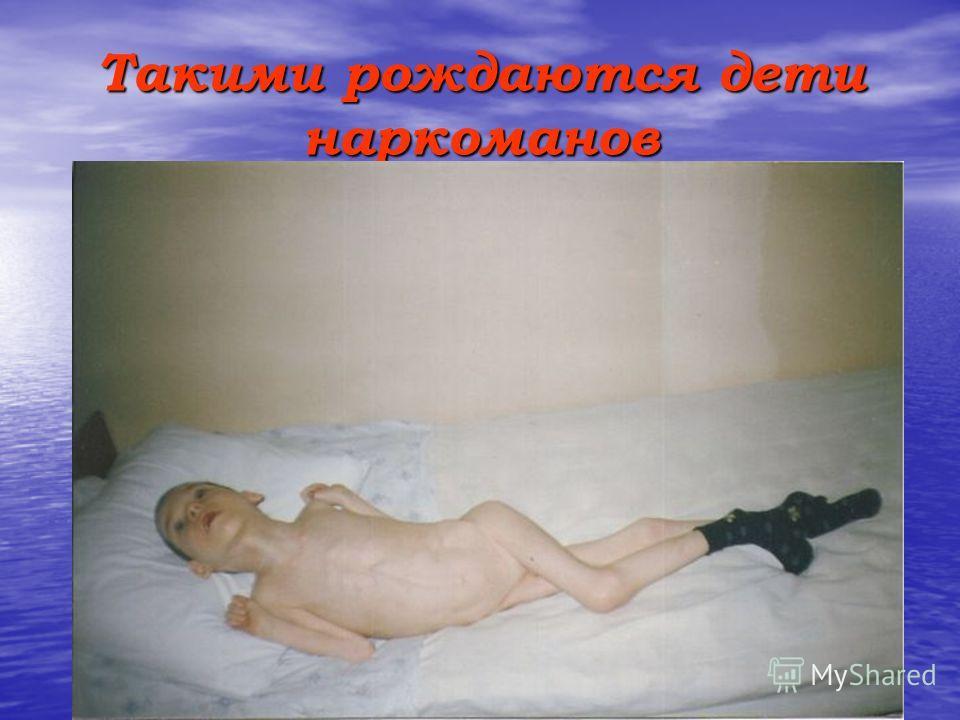 Такими рождаются дети наркоманов