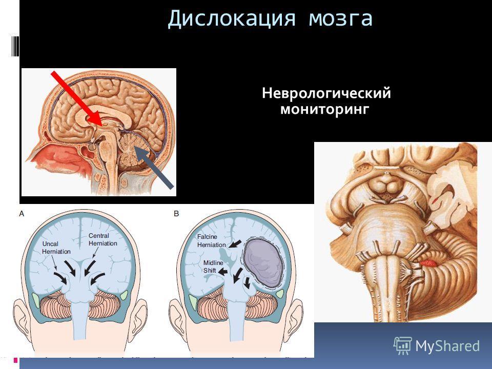 Дислокация мозга Неврологический мониторинг