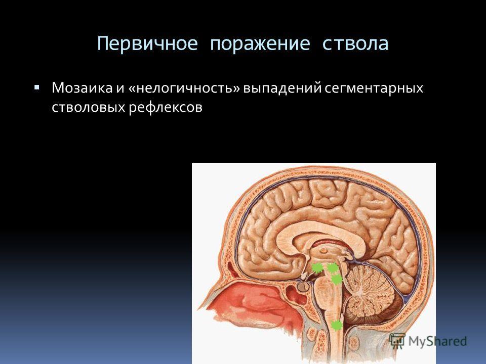 Первичное поражение ствола Мозаика и «нелогичность» выпадений сегментарных стволовых рефлексов