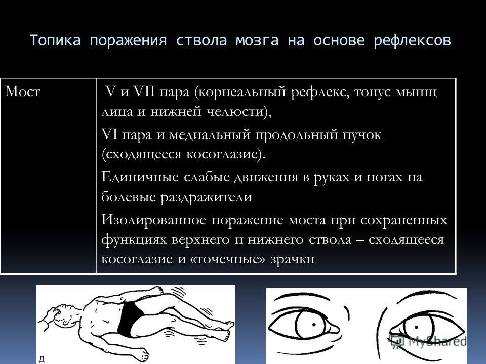 Топика поражения ствола мозга на основе рефлексовМост V и VII пара (корнеальный рефлекс, тонус мышц лица и нижней челюсти), V и VII пара (корнеальный рефлекс, тонус мышц лица и нижней челюсти), VI пара и медиальный продольный пучок (сходящееся косогл