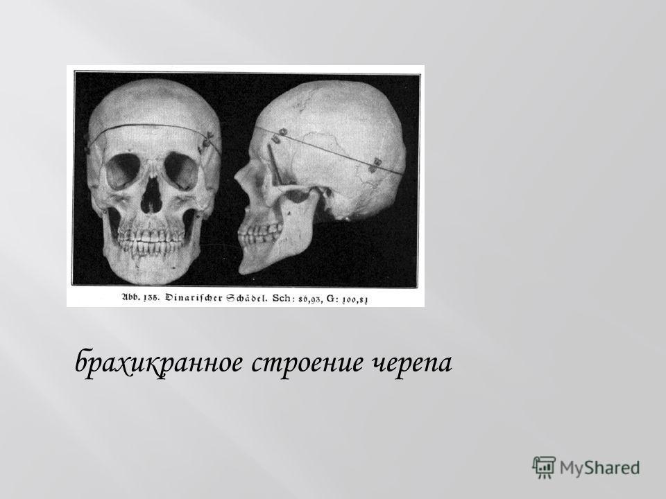 брахикранное строение черепа