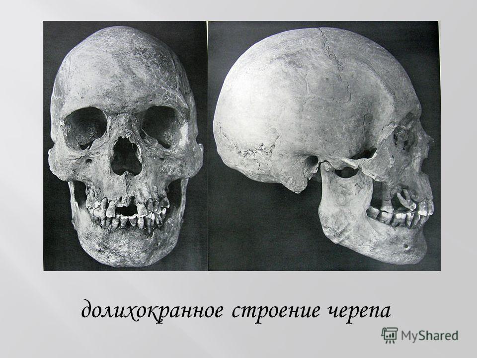 долихокранное строение черепа