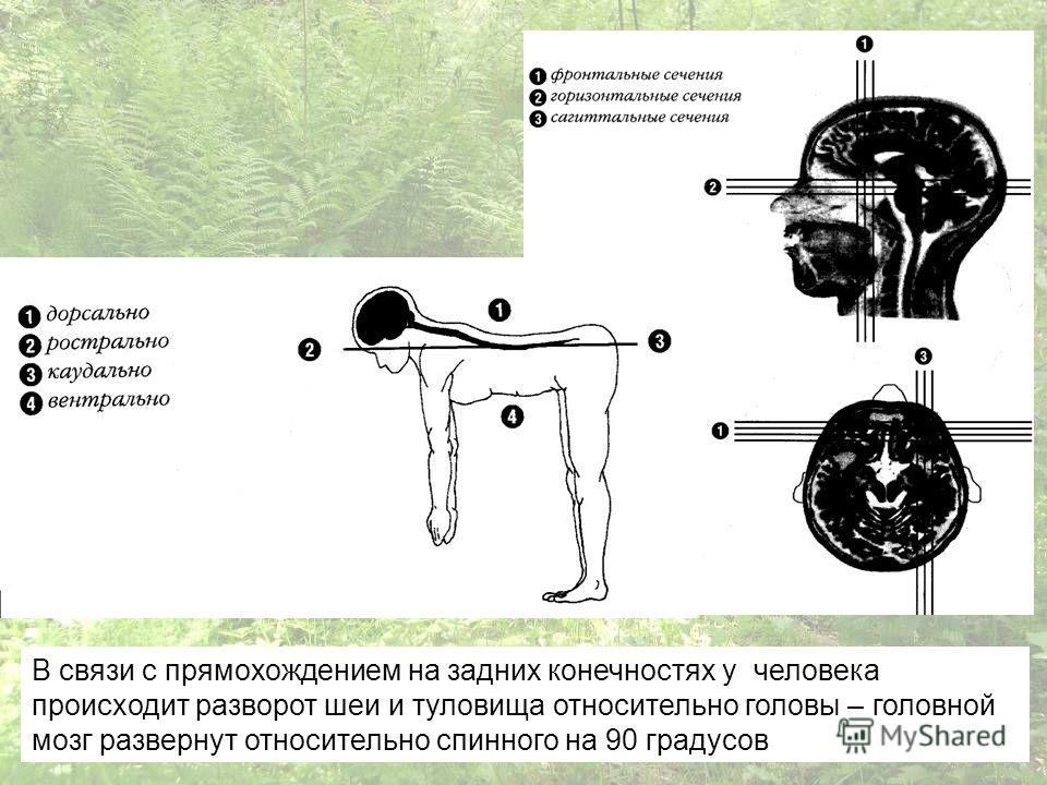 В связи с прямохождением на задних конечностях у человека происходит разворот шеи и туловища относительно головы – головной мозг развернут относительно спинного на 90 градусов