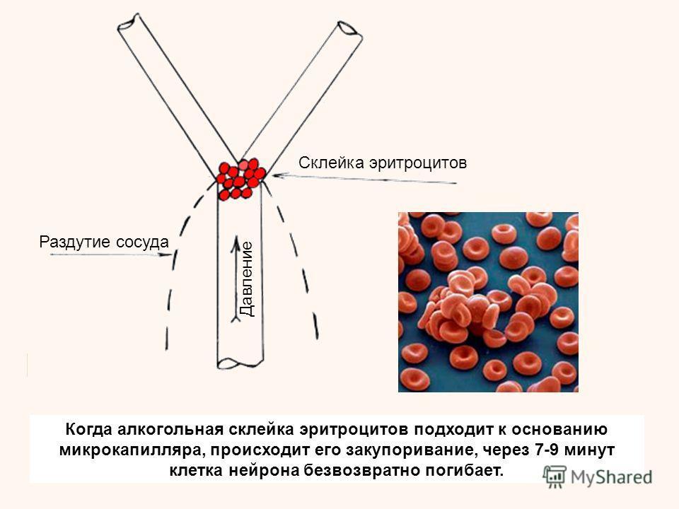 Когда алкогольная склейка эритроцитов подходит к основанию микрокапилляра, происходит его закупоривание, через 7-9 минут клетка нейрона безвозвратно погибает. Склейка эритроцитов Раздутие сосуда Давление