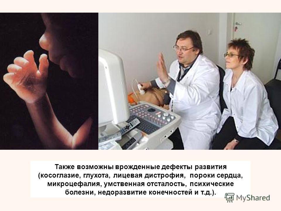 Также возможны врожденные дефекты развития (косоглазие, глухота, лицевая дистрофия, пороки сердца, микроцефалия, умственная отсталость, психические болезни, недоразвитие конечностей и т.д.).