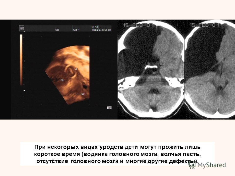При некоторых видах уродств дети могут прожить лишь короткое время (водянка головного мозга, волчья пасть, отсутствие головного мозга и многие другие дефекты).
