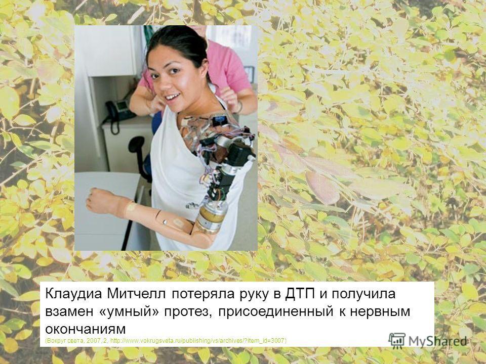 Клаудиа Митчелл потеряла руку в ДТП и получила взамен «умный» протез, присоединенный к нервным окончаниям (Вокруг света, 2007, 2, http://www.vokrugsveta.ru/publishing/vs/archives/?item_id=3007)
