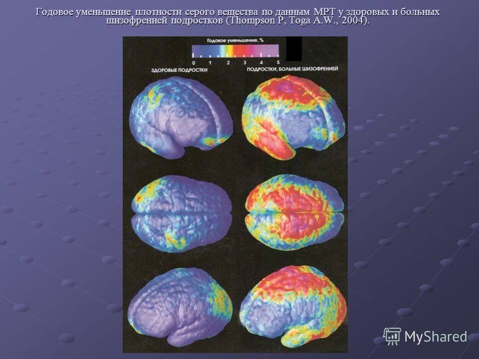 Годовое уменьшение плотности серого вещества по данным МРТ у здоровых и больных шизофренией подростков (Thompson P, Toga A.W., 2004).