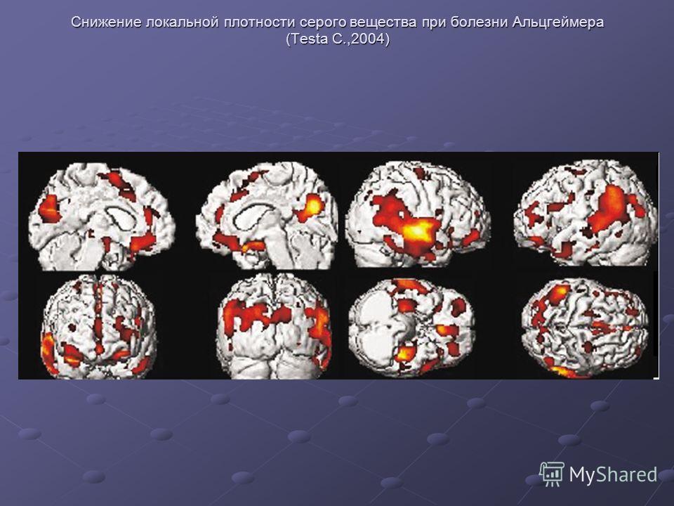 Снижение локальной плотности серого вещества при болезни Альцгеймера (Testa C.,2004)