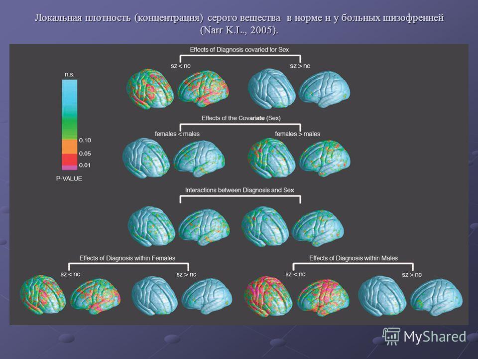 Локальная плотность (концентрация) серого вещества в норме и у больных шизофренией (Narr K.L., 2005).