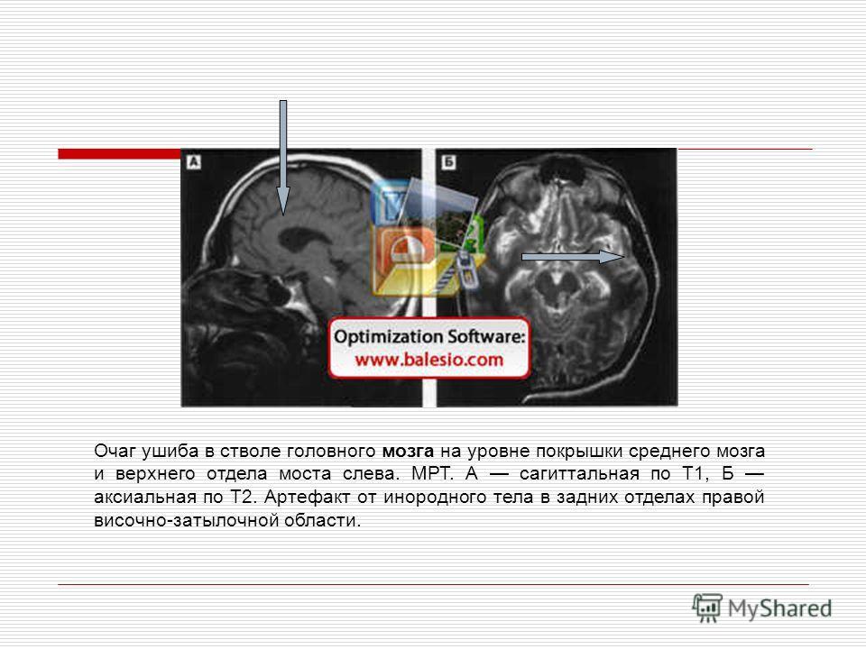 Очаг ушиба в стволе головного мозга на уровне покрышки среднего мозга и верхнего отдела моста слева. МРТ. А сагиттальная по Т1, Б аксиальная по Т2. Артефакт от инородного тела в задних отделах правой височно-затылочной области.