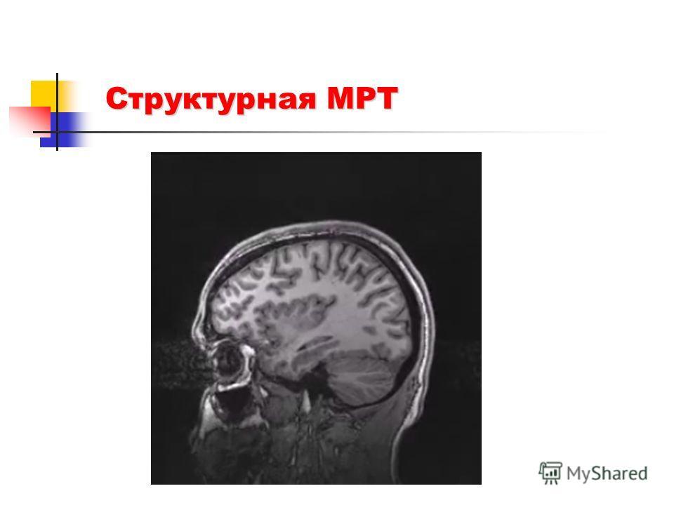 Структурная МРТ