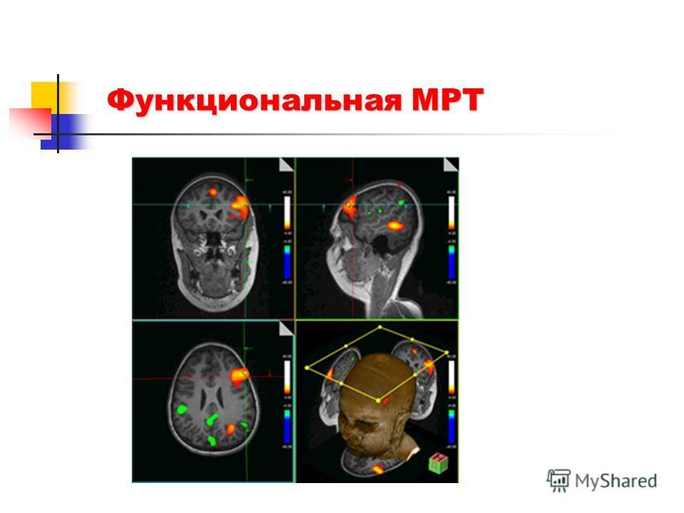 Функциональная МРТ