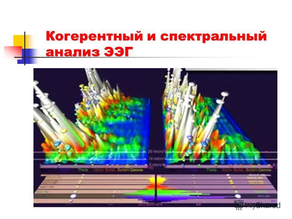 Когерентный и спектральный анализ ЭЭГ