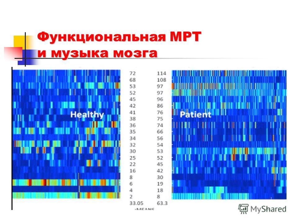 Функциональная МРТ и музыка мозга