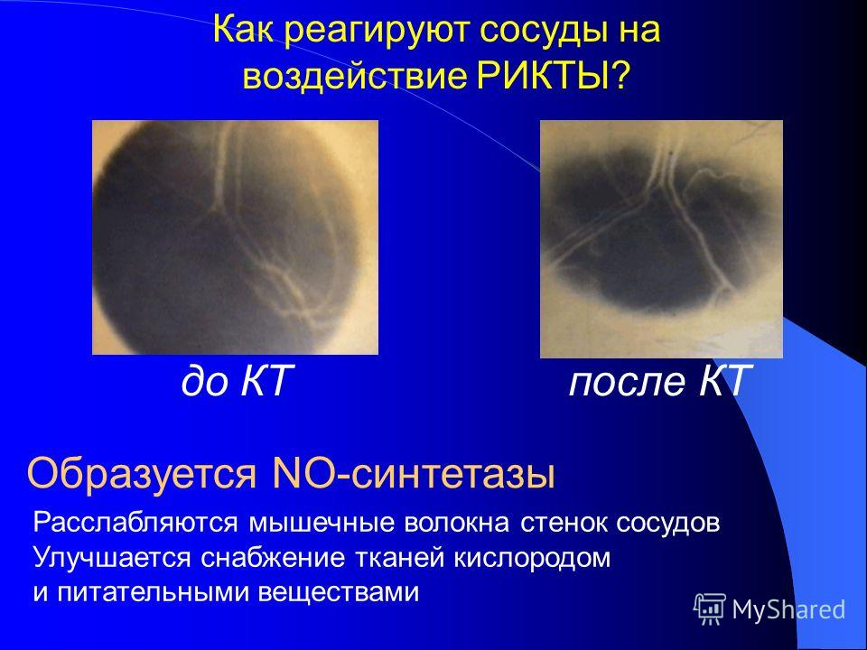 Влияние квантовой терапии на кислородное обеспечение тканей обеспечение тканей 1.Повышение артериального pO 2 2. Повышение содержания 2,3-ДФГ в эритроцитах эритроцитах 3. Снижение тканевого рН (эффект Бора) 4. Активация цитохромов 5. Повышение артери
