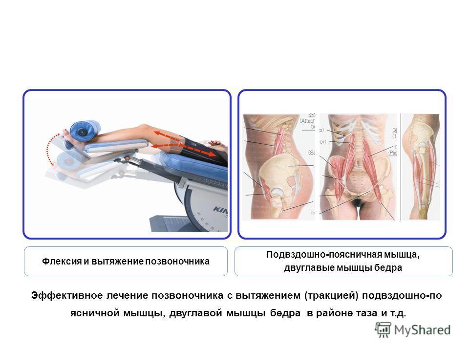 Эффективное лечение позвоночника с вытяжением (тракцией) подвздошно-по ясничной мышцы, двуглавой мышцы бедра в районе таза и т.д. Флексия и вытяжение позвоночника Подвздошно-поясничная мышца, двуглавые мышцы бедра