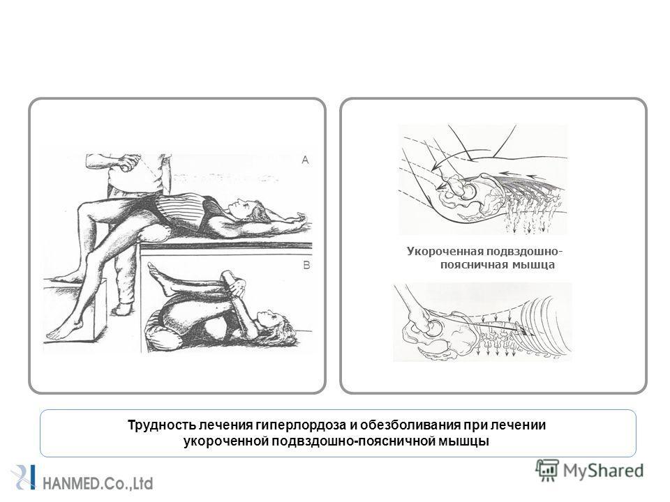Трудность лечения гиперлордоза и обезболивания при лечении укороченной подвздошно-поясничной мышцы Укороченная подвздошно- поясничная мышца