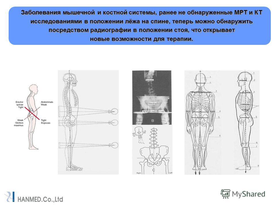 Заболевания мышечной и костной системы, ранее не обнаруженные МРТ и КТ исследованиями в положении лёжа на спине, теперь можно обнаружить посредством радиографии в положении стоя, что открывает новые возможности для терапии. Заболевания мышечной и кос