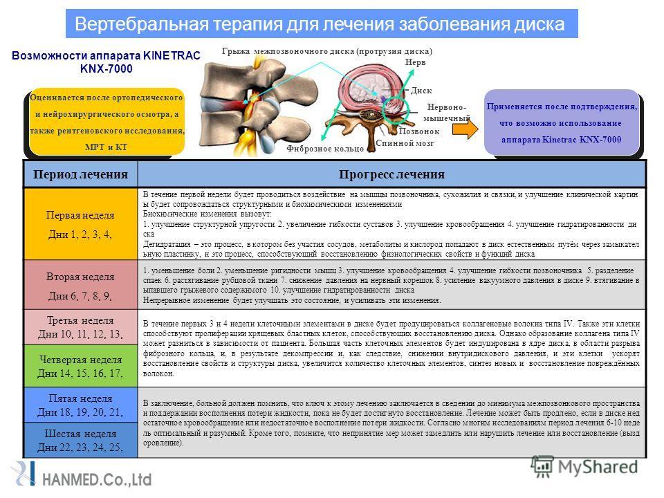 Вертебральная терапия для лечения заболевания диска Грыжа межпозвоночного диска (протрузия диска) Диск Нервоно- мышечный Позвонок Спинной мозг Фиброзное кольцо Нерв Возможности аппарата KINETRAC KNX-7000 Оценивается после ортопедического и нейрохирур