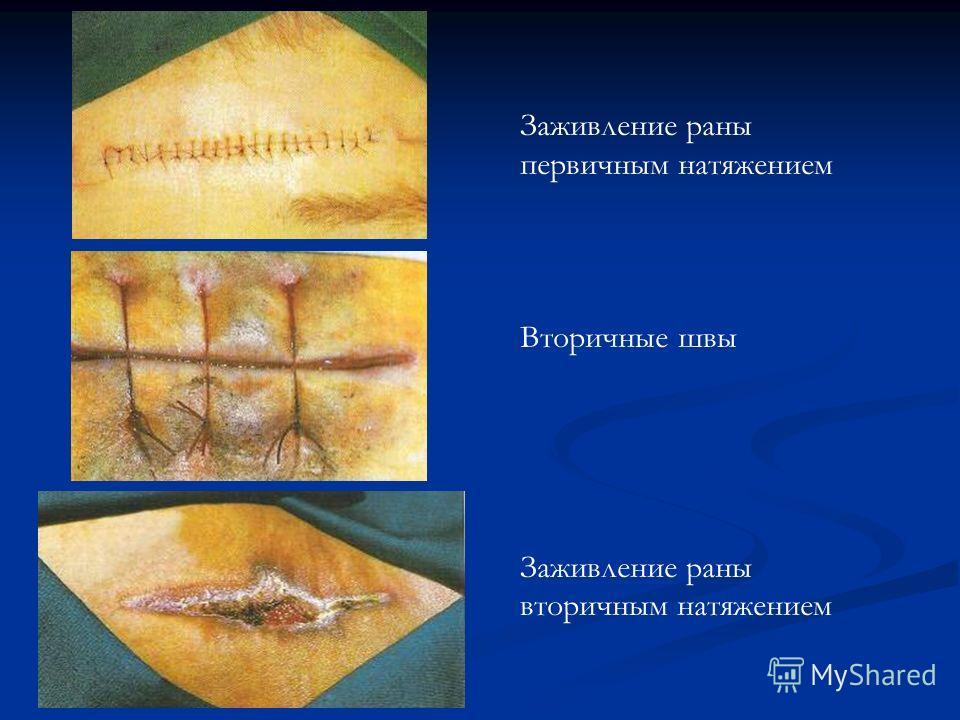 Заживление раны первичным натяжением Вторичные швы Заживление раны вторичным натяжением