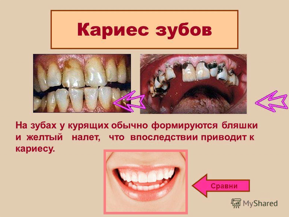 На зубах у курящих обычно формируются бляшки и желтый налет, что впоследствии приводит к кариесу. Кариес зубов Сравни