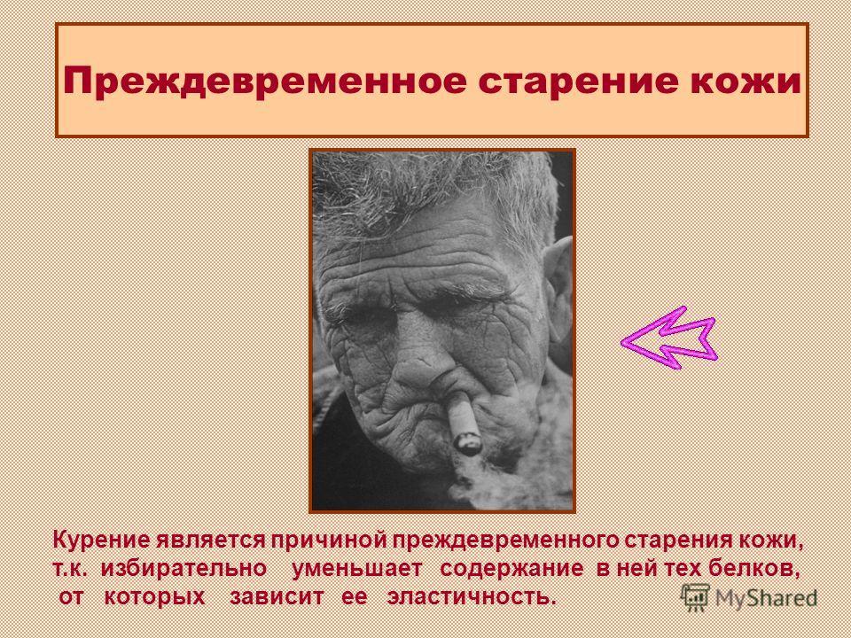 Курение является причиной преждевременного старения кожи, т.к. избирательно уменьшает содержание в ней тех белков, от которых зависит ее эластичность. Преждевременное старение кожи
