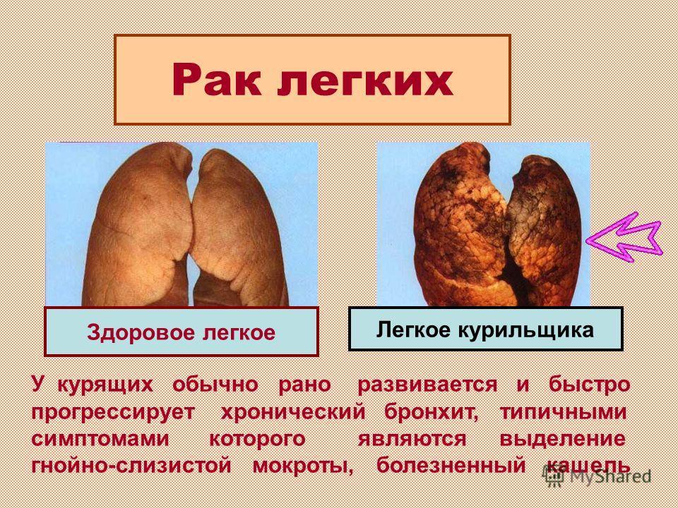 У курящих обычно рано развивается и быстро прогрессирует хронический бронхит, типичными симптомами которого являются выделение гнойно-слизистой мокроты, болезненный кашель Рак легких Здоровое легкое Легкое курильщика