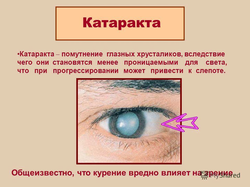 Катаракта помутнение глазных хрусталиков, вследствие чего они становятся менее проницаемыми для света, что при прогрессировании может привести к слепоте. Общеизвестно, что курение вредно влияет на зрение Катаракта