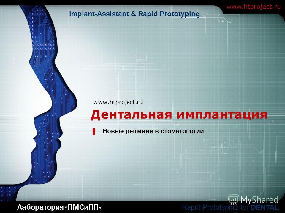 LOGO Дентальная имплантация www.htproject.ru Новые решения в стоматологии Лаборатория «ПМСиПП» www.htproject.ru Rapid Prototyping for DENTAL Implant-Assistant & Rapid Prototyping