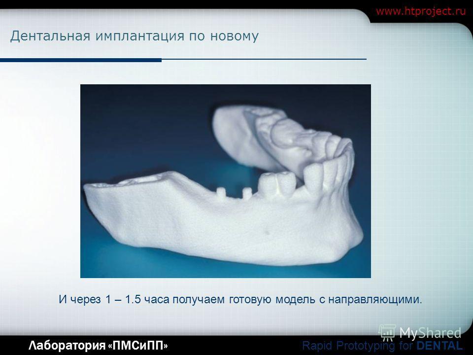 Company Logo Лаборатория «ПМСиПП» Rapid Prototyping for DENTAL www.htproject.ru Дентальная имплантация по новому И через 1 – 1.5 часа получаем готовую модель с направляющими.