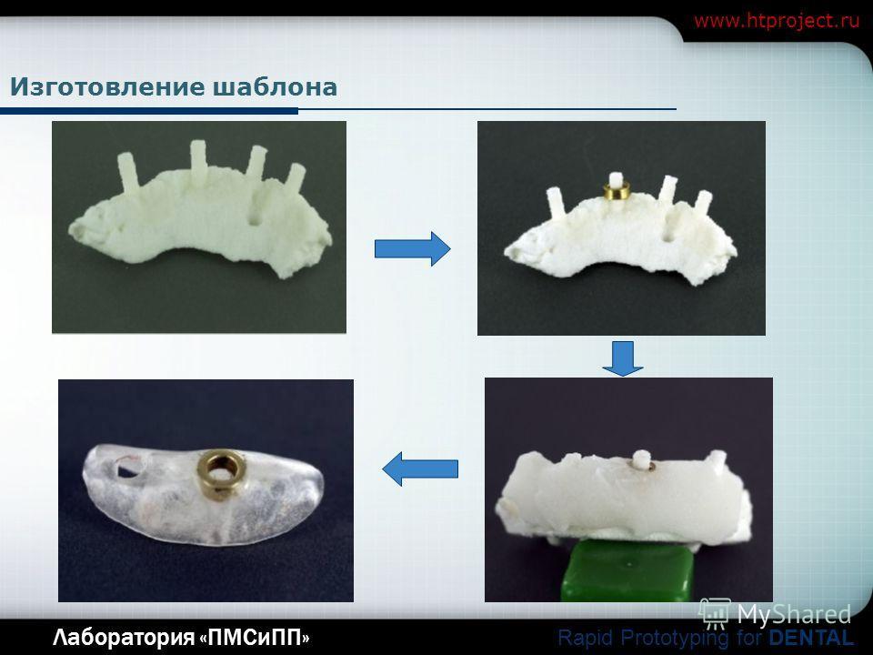 Company Logo Лаборатория «ПМСиПП» Rapid Prototyping for DENTAL www.htproject.ru Изготовление шаблона