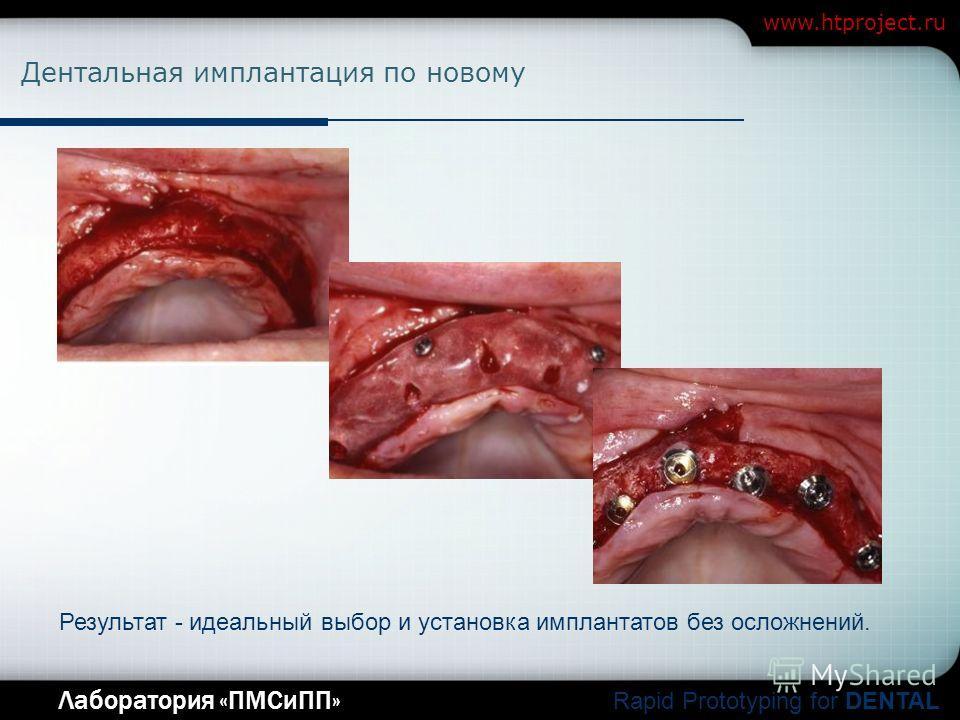 Company Logo Лаборатория «ПМСиПП» Rapid Prototyping for DENTAL www.htproject.ru Дентальная имплантация по новому Результат - идеальный выбор и установка имплантатов без осложнений.