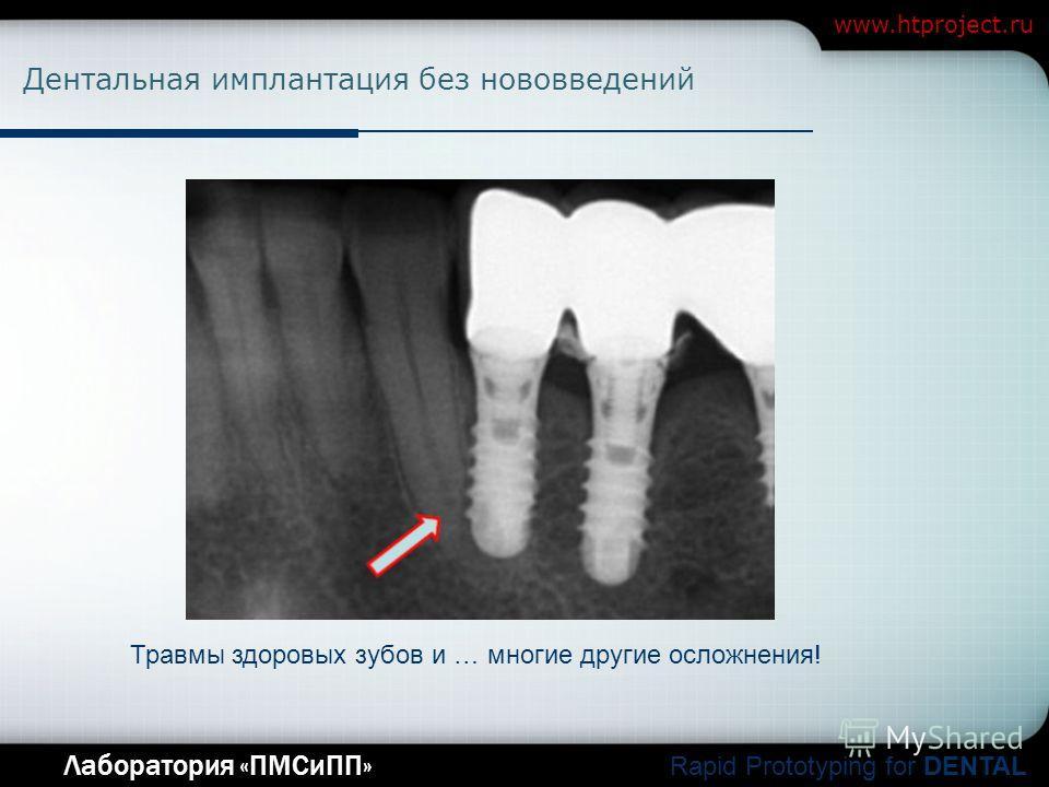 Company Logo Лаборатория «ПМСиПП» Rapid Prototyping for DENTAL www.htproject.ru Дентальная имплантация без нововведений Травмы здоровых зубов и … многие другие осложнения!