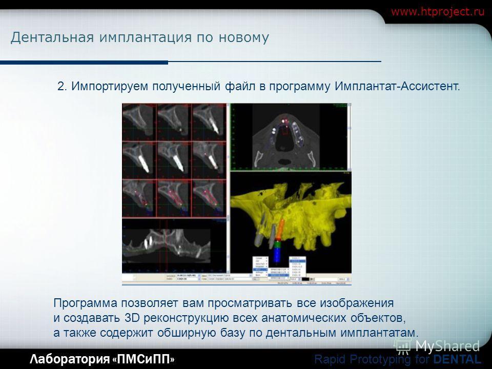 Company Logo Лаборатория «ПМСиПП» Rapid Prototyping for DENTAL www.htproject.ru Дентальная имплантация по новому 2. Импортируем полученный файл в программу Имплантат-Ассистент. Программа позволяет вам просматривать все изображения и создавать 3D реко