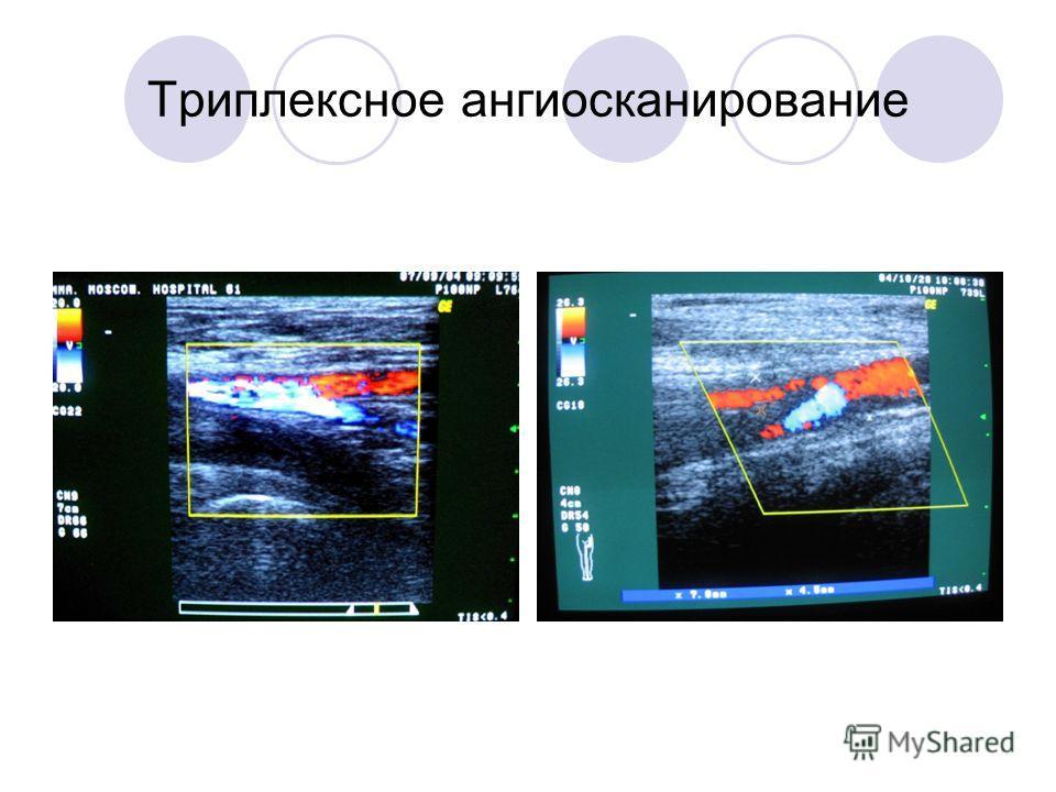 Триплексное ангиосканирование