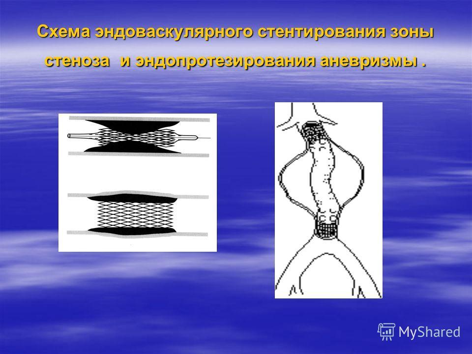 Схема эндоваскулярного стентирования зоны стеноза и эндопротезирования аневризмы.