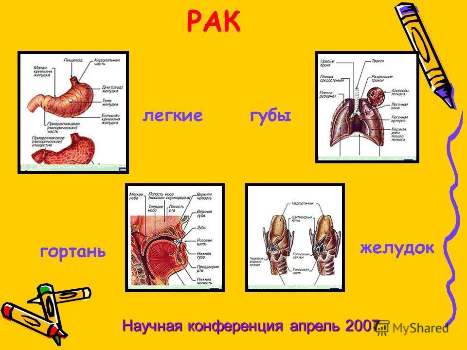 РАК легкиегубы гортань желудок Научная конференция апрель 2007