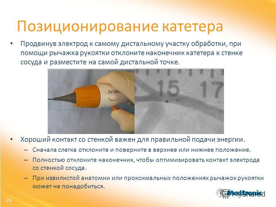 24 Позиционирование катетера Продвинув электрод к самому дистальному участку обработки, при помощи рычажка рукоятки отклоните наконечник катетера к стенке сосуда и разместите на самой дистальной точке. Хороший контакт со стенкой важен для правильной
