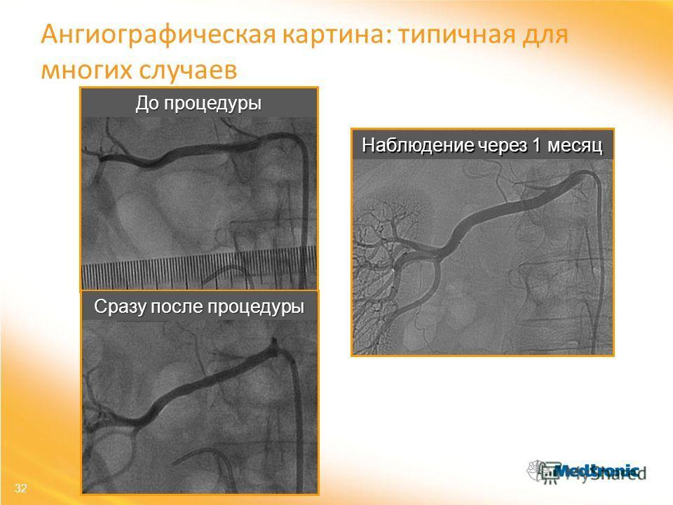 До процедуры Наблюдение через 1 месяц Сразу после процедуры 32 Ангиографическая картина: типичная для многих случаев
