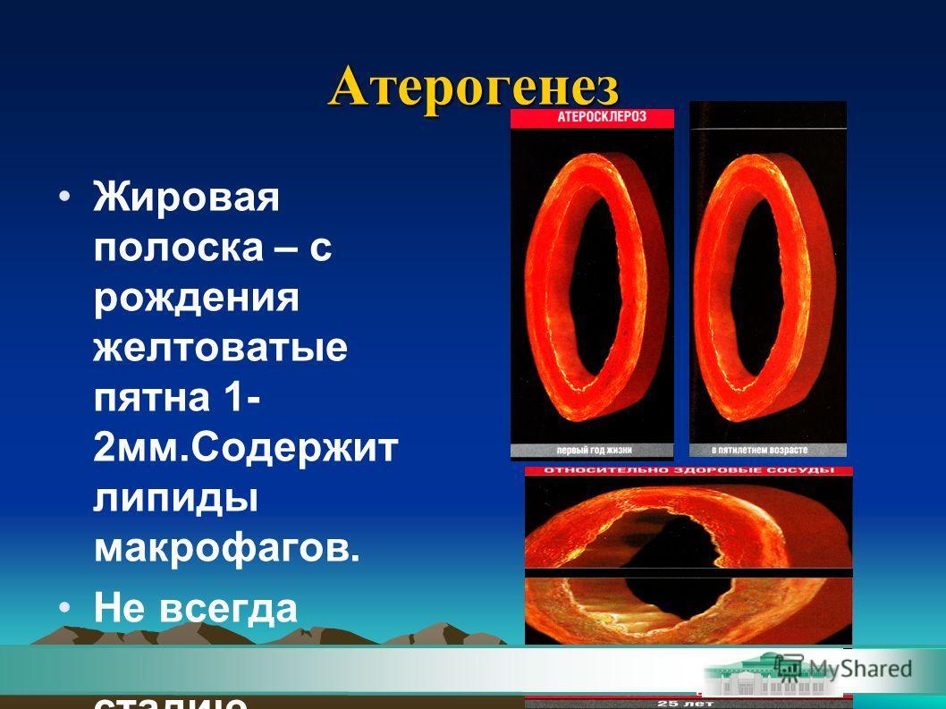 Атерогенез Жировая полоска – с рождения желтоватые пятна 1- 2мм.Содержит липиды макрофагов. Не всегда переходит в др. стадию.