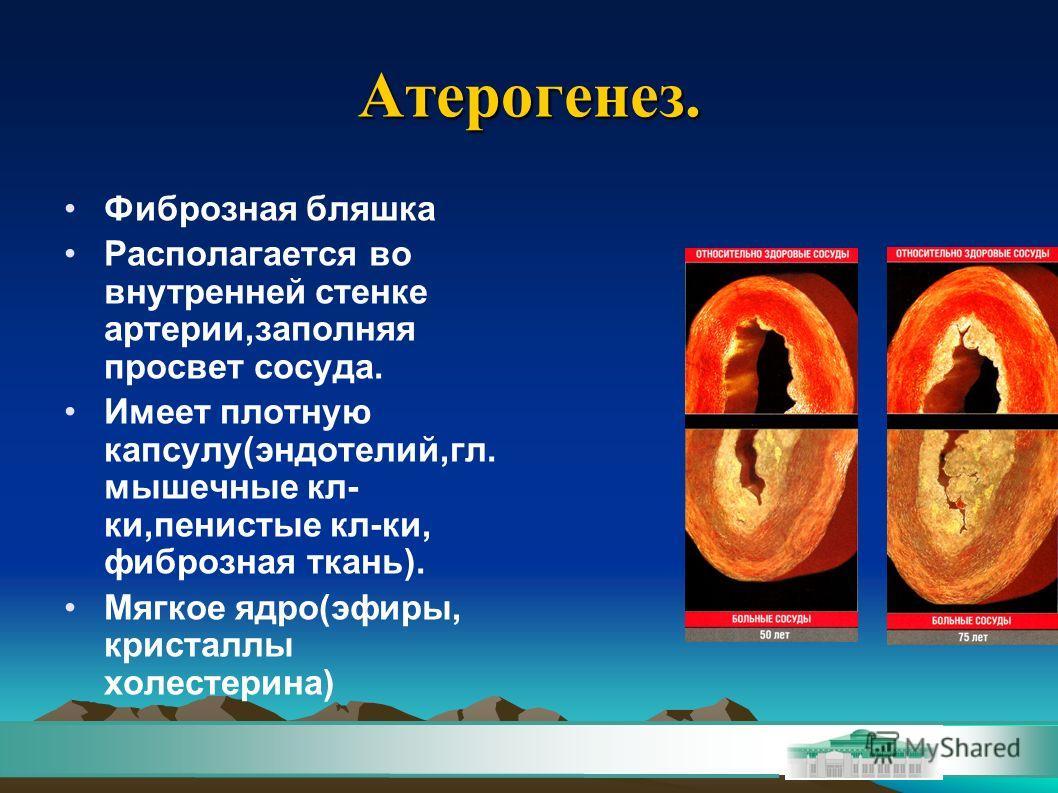 Атерогенез. Фиброзная бляшка Располагается во внутренней стенке артерии,заполняя просвет сосуда. Имеет плотную капсулу(эндотелий,гл. мышечные кл- ки,пенистые кл-ки, фиброзная ткань). Мягкое ядро(эфиры, кристаллы холестерина)