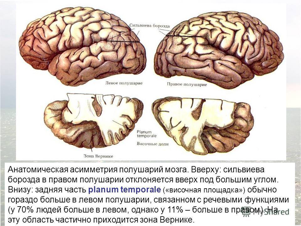 Анатомическая асимметрия полушарий мозга. Вверху: сильвиева борозда в правом полушарии отклоняется вверх под большим углом. Внизу: задняя часть planum temporale («височная площадка») обычно гораздо больше в левом полушарии, связанном с речевыми функц