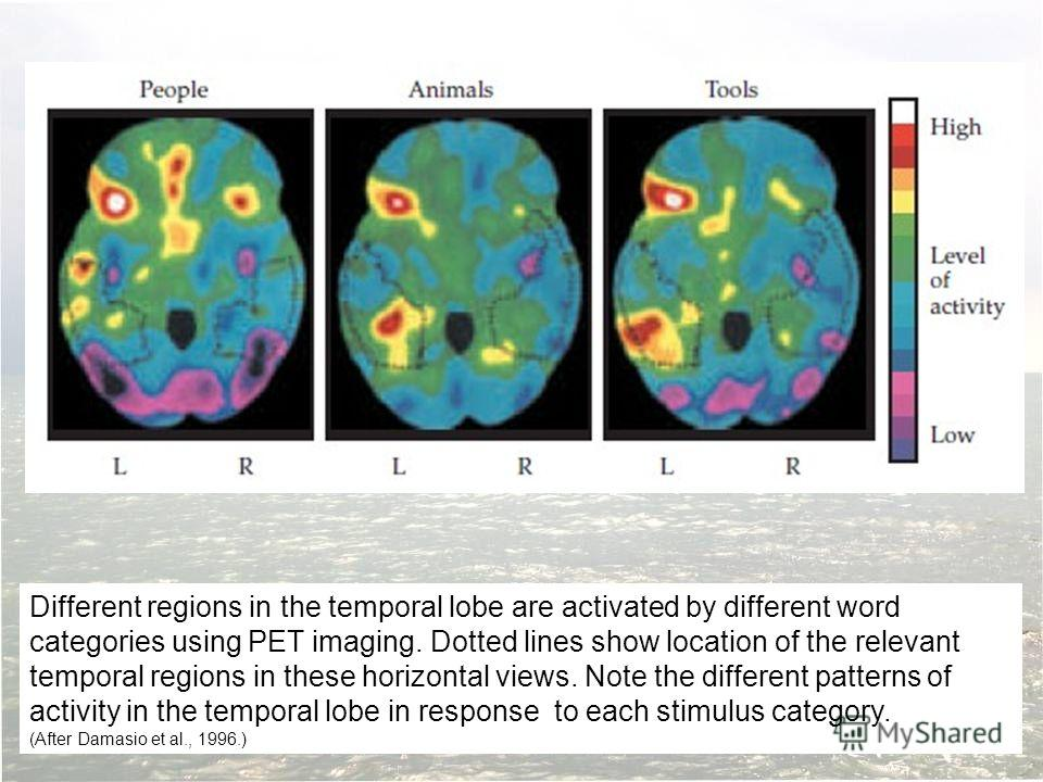 Different regions in the temporal lobe are activated by different word categories using PET imaging. Dotted lines show location of the relevant temporal regions in these horizontal views. Note the different patterns of activity in the temporal lobe i