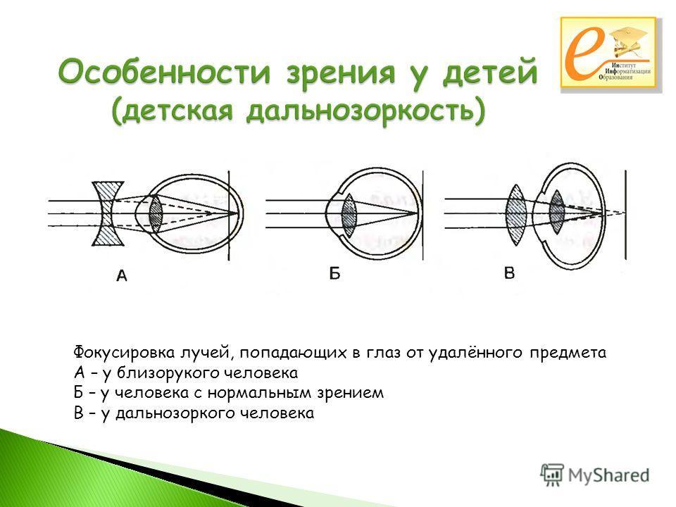 Фокусировка лучей, попадающих в глаз от удалённого предмета А – у близорукого человека Б – у человека с нормальным зрением В – у дальнозоркого человека