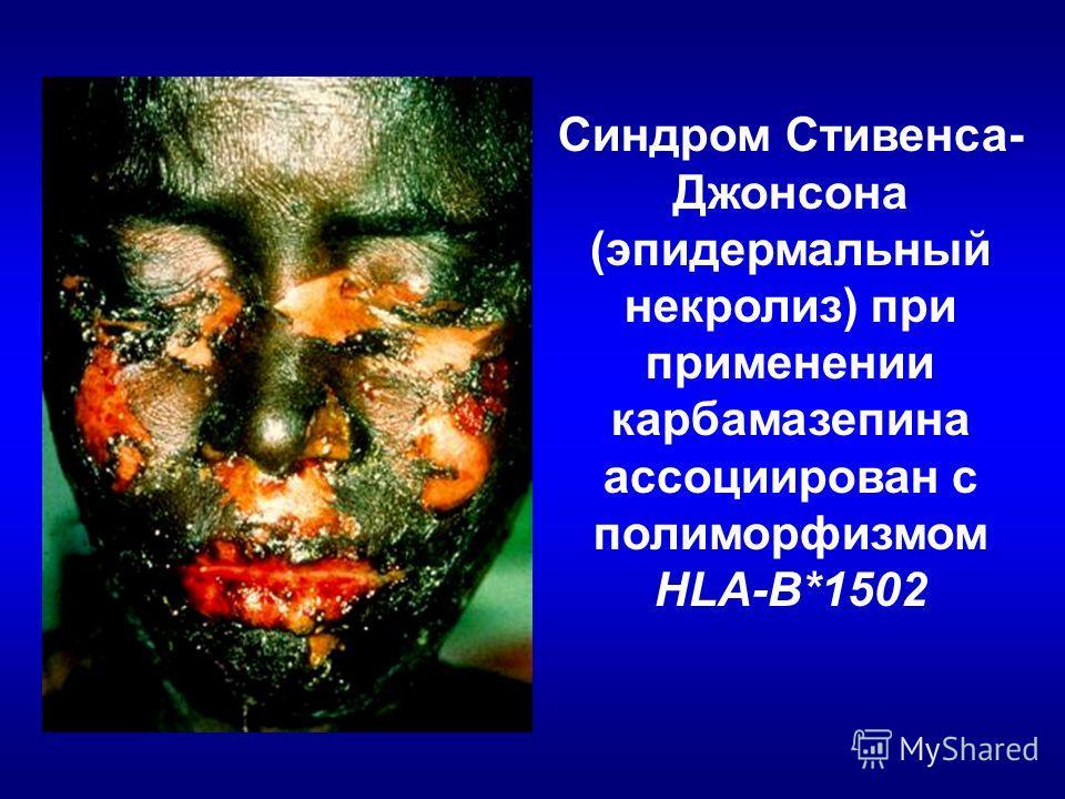 Синдром Стивенса- Джонсона (эпидермальный некролиз) при применении карбамазепина ассоциирован с полиморфизмом HLA-B*1502