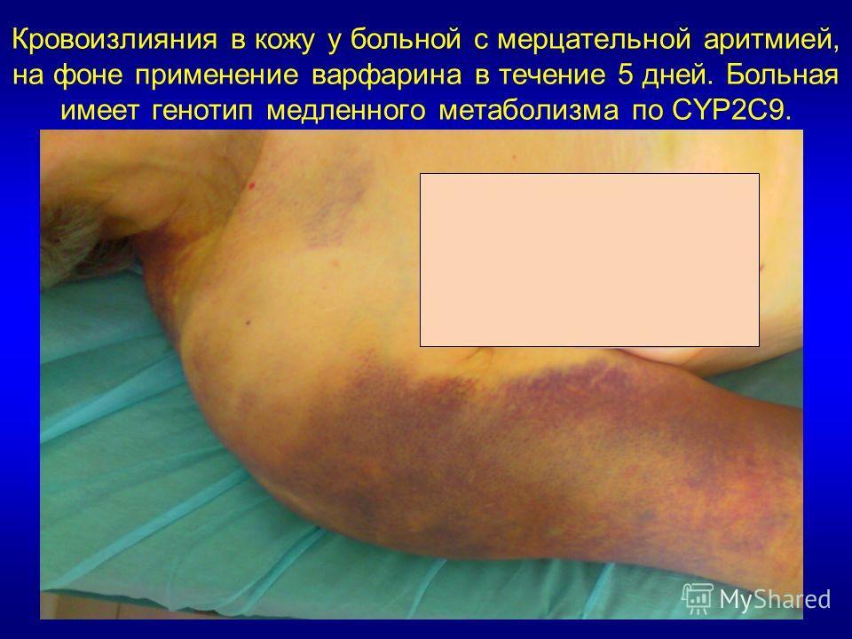 Кровоизлияния в кожу у больной с мерцательной аритмией, на фоне применение варфарина в течение 5 дней. Больная имеет генотип медленного метаболизма по CYP2C9.