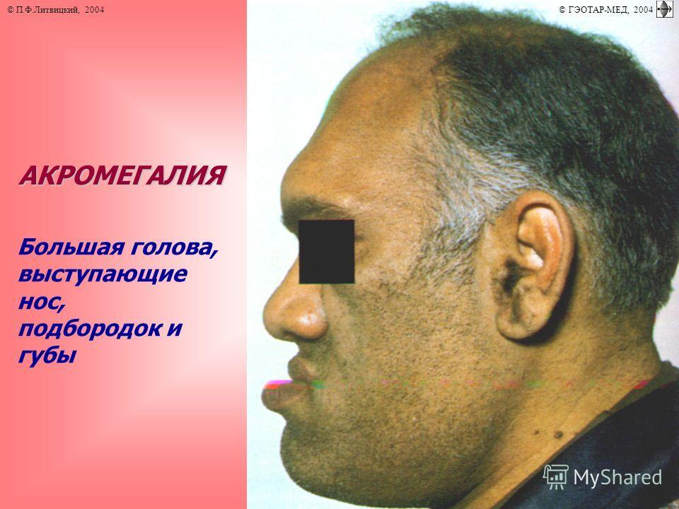 АКРОМЕГАЛИЯ Большая голова, выступающие нос, подбородок и губы © П.Ф.Литвицкий, 2004 © ГЭОТАР-МЕД, 2004